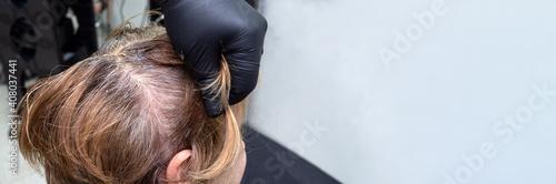 Slika na platnu Gray hair appeared on the woman head