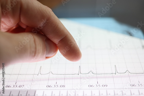 Obraz Thumb over tablet with heart cardiogram image - fototapety do salonu