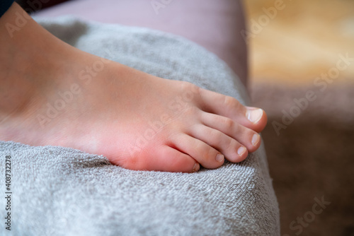 Obraz na plátně Close up of swollen leg finger