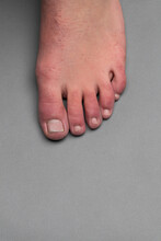 Single Foot With Covid Toes On A Gray Background
