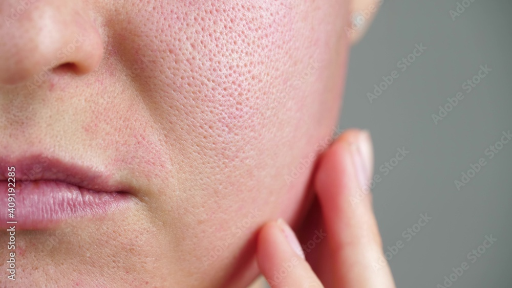 Fototapeta Macro skin with enlarged pores. Allergic reaction, peeling, care for problem skin.