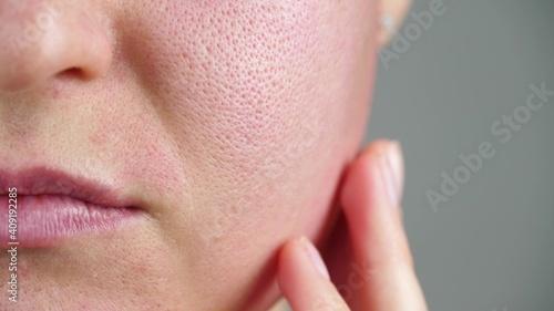 Obraz Macro skin with enlarged pores. Allergic reaction, peeling, care for problem skin. - fototapety do salonu