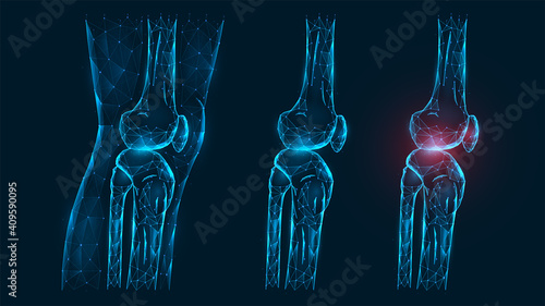 Obraz Polygonal vector illustration thigh and knee joint side view. Disease, pain, and inflammation of the knee joint. Low poly model of a healthy and injured human knee on a dark blue background - fototapety do salonu