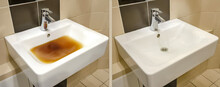 Blockage In The Sink Before And After The Problem Is Resolved. Clog Problems In The Bathroom And Toilet