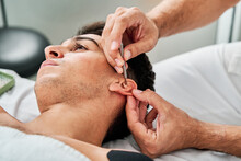 Male Physiotherapist Using Needle On Ear Of Client During Acupuncture Therapy In Clinic