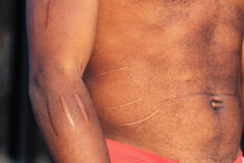 Faceless Shirtless Black Man Showing Long Scars On Arm And Naked Torso In Soft Sunlight
