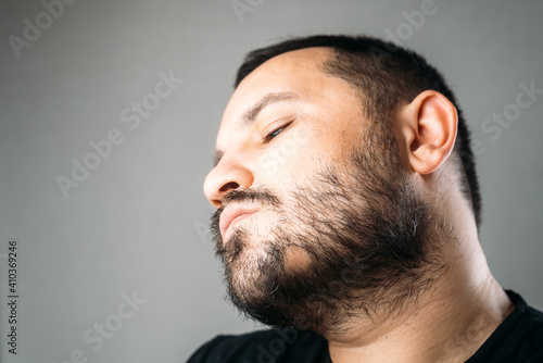 Fotomural Man with alopecia area in the beard