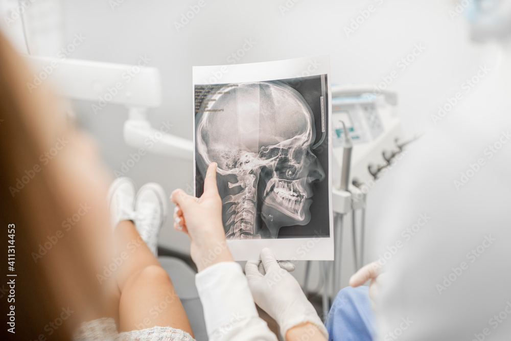 Fototapeta Dentist showing skull x-ray for a female patient during an orthodontic treatment. Woman having a consultation with an orthodontist. Close up. High quality photo