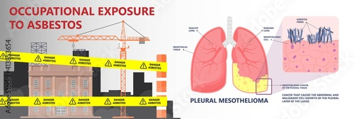 Obraz na plátně Asbestos breath chest pain testes ascites Hydrocele scrotum Swollen Difficulty f