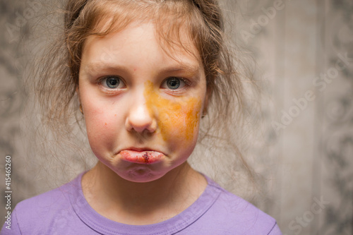 Portrait of a little girl with a split lip and abrasions on her face Wallpaper Mural
