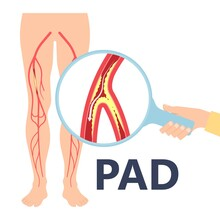 Graft Artery PAD Flow Legs Pain Fatty Treat Hips Calf Toes Feet High Heart ABI Foot Test Ankle Clot Injury Arms Stent Veins Sores Index Attack Venous Ulcers Blood Limbs