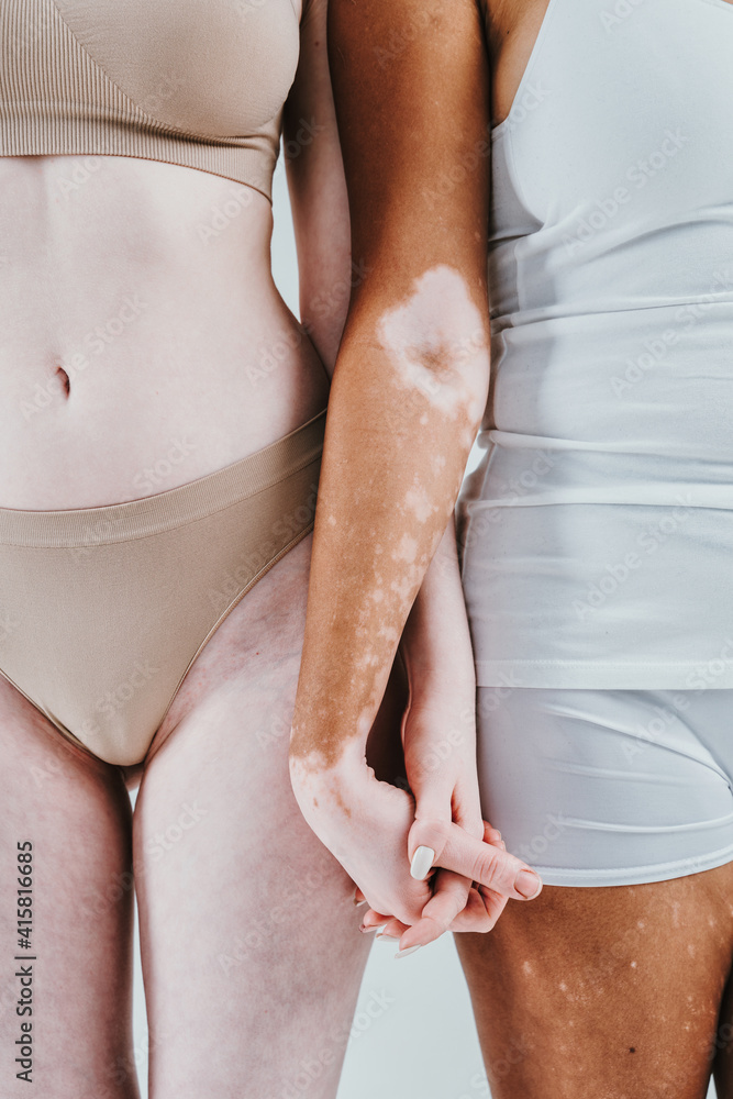 Fototapeta Group of multiethnic women with different kind of skin posing together in studio. Concept about body positivity and self acceptance
