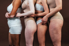 Group Of Multiethnic Women With Different Kind Of Skin Posing Together In Studio. Concept About Body Positivity And Self Acceptance