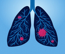 Blue Lungs Infected With COVID Virus