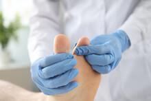 Gloved Doctor Examines Patient's Skin On Leg Between Toes