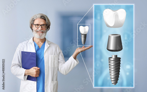 Fotografia, Obraz Male dentist with digital model of tooth implant in clinic