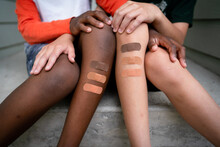 Multiracial Brothers With Multicolored Bandages On Legs Sit On Front Steps