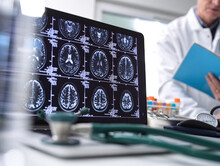 Close Up Of Stethoscope And Brain Scan On A Computer Screen, Scientist In Background.