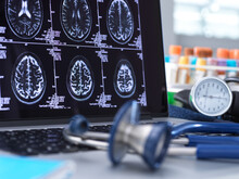 Close Up Of Stethoscope And Brain Scan On A Computer Screen.