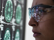 Neurology Diagnosis, Human Brain Scan On A Screen Being Analysed By A Female Doctor In A Neurology Clinic.