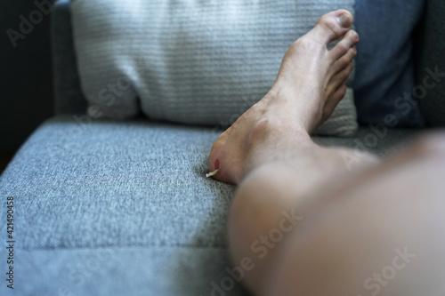 Valokuvatapetti Massive blister on right foot