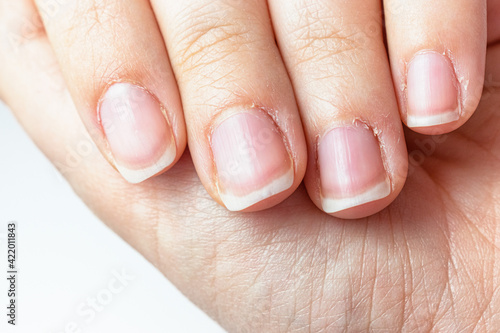 Fotografia Close up on a female hands with dry skin and hangnails