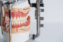 Jaw Model In Articulator On White Background With Empty Space