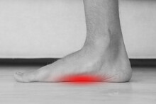 Foot Pain Because Of Strong Flat Feet Also Called Pes Planus Or Fallen Arches. The Arches On The Inside Of Feet Are Flattened. Red Effect Of Pain