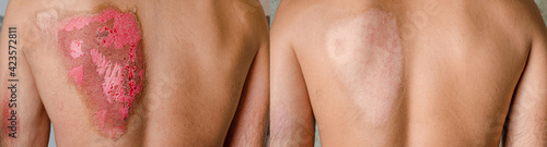 Tela Before and after second-degree burns on male back caused by heat