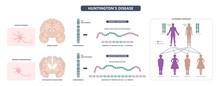 Huntington Parkinson Motor Alzheimer Neuron Brain DNA Gene Nerve Cell Juvenile Problem Defect Genetic Basal Ganglia Neuro Repeat Mutant Damage Testing Defective Mood Inherits System Family Memory Loss