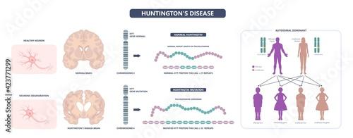 Obraz na plátně Huntington parkinson Motor alzheimer neuron brain DNA gene nerve cell juvenile p