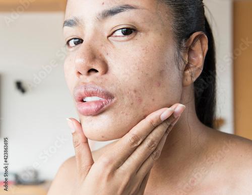 Obraz woman worry her acne. Woman skin care concept - fototapety do salonu