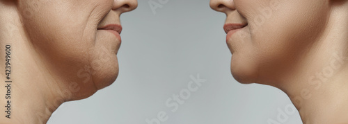 Obraz Double chin removal, facelift and neck liposuction - fototapety do salonu