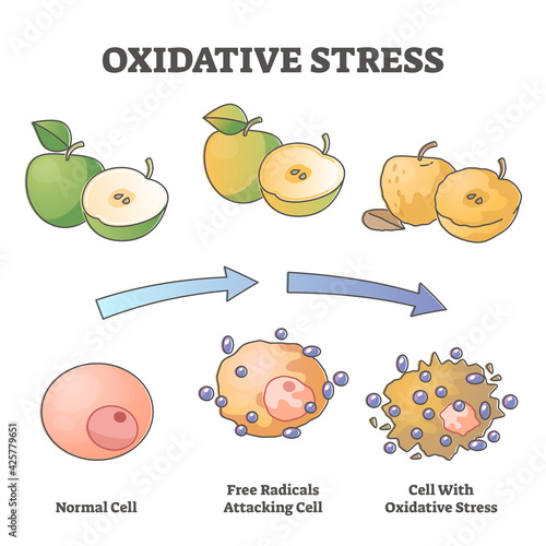 Obraz Oxidative stress aging as free radical cell attacking process outline diagram - fototapety do salonu