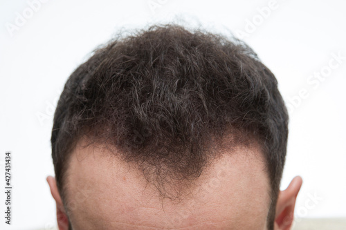 Halbglatze eines Mannes mit Haarausfallvon vorne nach einer Haarbehandlung #427431434