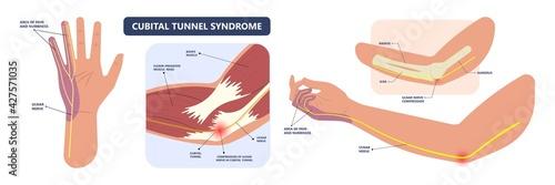 Fototapeta ulnar nerve muscle bone elbow swollen pain hand palm bone spurs ring little medi