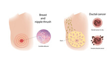 Woman Breast And Nipple Thrush, Ductal Cancer. Comparison. Medical Vector Illustration.