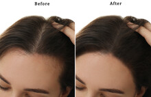 Woman Suffering From Baldness On White Background, Closeup. Collage With Photos Before And After Treatment
