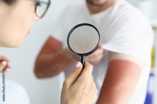 Fototapeta Doctor examining sunburns on patient arm using magnifying glass closeup obraz