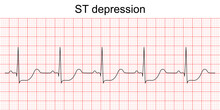 Electrocardiogram Show ST Segment Depression Pattern. Heart Attack. Ischemic. Coronary Artery Disease. Angina Pectoris. Chest Pain. ECG. EKG. Medical Health Care.