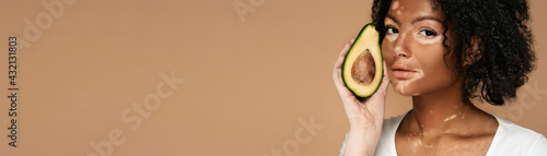 Woman with vitiligo holds avocado near her spotted face. Moisturizing and care for pigmented skin using cosmetics with avocado. Web banner, horizontal - fototapety na wymiar