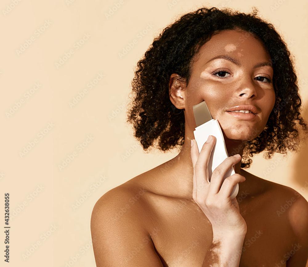 Obraz Ultrasonic peeling for a woman's face with vitiligo and problem skin using ultrasound scrubber. Cleansing facial skin fototapeta, plakat