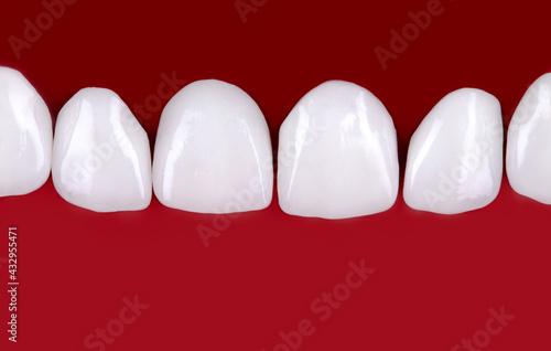 Fototapeta Ceramic dentures and crowns on black background