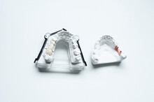 From Above Of Upper Jaw Casts Made Of Gypsum With Artificial Teeth And Dental Posts In Gum