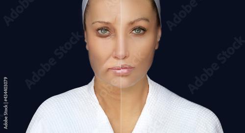 Fotografia Plastic Surgery Results