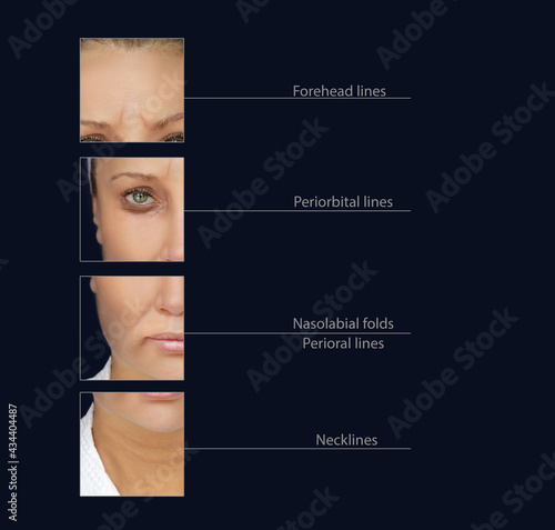 Obraz na płótnie Effects of ageing,Frown/scowl lines ,Nasolabial folds,Neck ,Under eye circles,neck lines