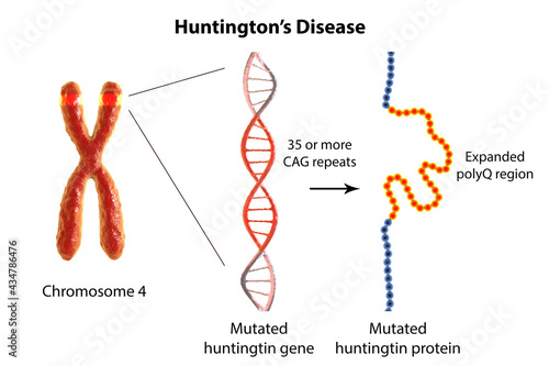 Tablou Canvas Molecular genesis of Huntington's disease, 3D illustration