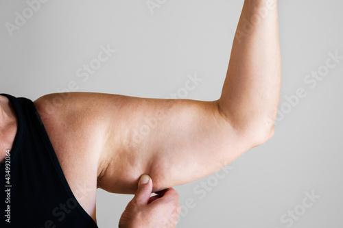 Fotografia, Obraz Older Woman Cosmetic Liposuction Surgery