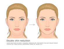 Double Chin Fat Loss Front View Before And After Vector Illustration.