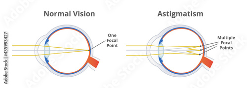 Foto Astigmatism, refractive or refraction error